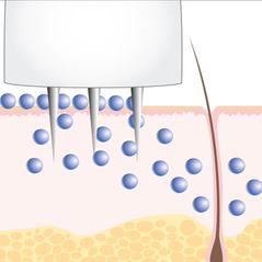 Microneedling - Cosmetic Les Belles - Abtwil SG